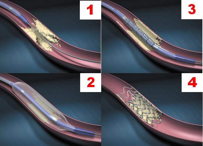 経 皮 的 冠動脈 インター ベンション